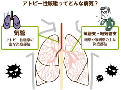 鶏における感染性気管支炎の治療